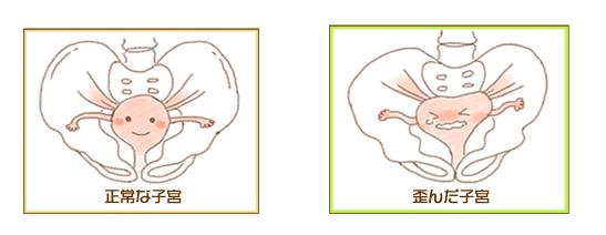 子宮と骨盤の変化のイラスト